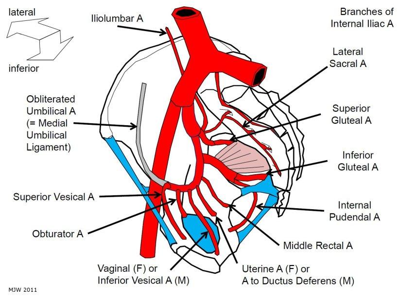 Internal Iliac Arteries - MJW 2011
